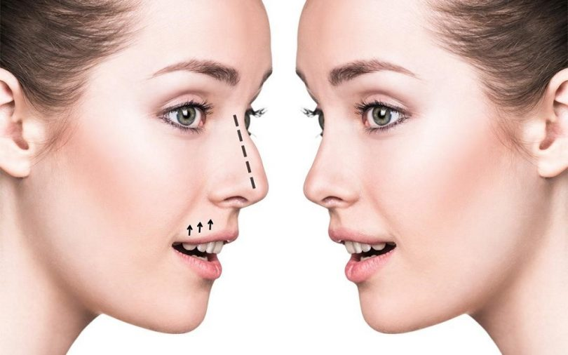 rhinoplasty in Ludhiana
